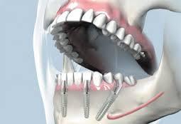 preturi la implanturi dentare din Bucuresti