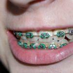 Aparat dentar ieftin