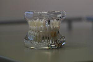 scoaterea nervului unui dinte